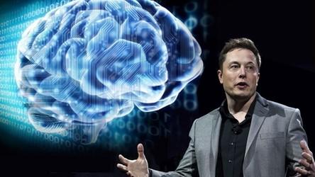 Implant od Elona Muska pozwoli na streaming muzyki bezpośrednio do mózgu
