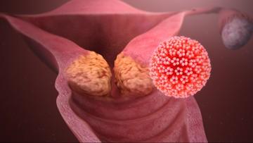Liczba zachorowań na nowotwory ma się podwoić. Światowa Organizacja Zdrowia radzi jak ich uniknąć